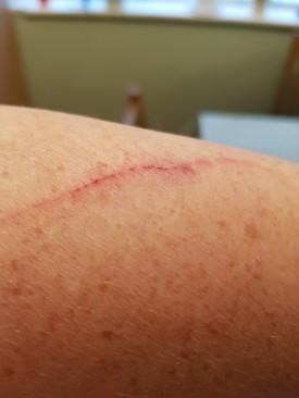 cut arm